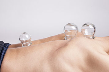 cupping manchester,cupping therapy, hijama doncaster