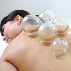 cupping doncaster, cupping alternative therapist doncaster